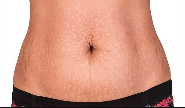 How to remove stretch marks permanently at home